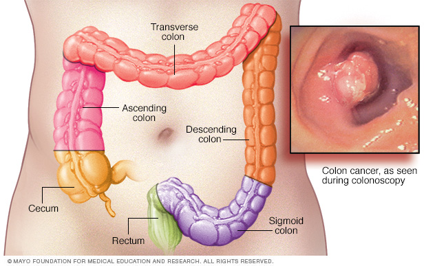 estilodeviday cancercolorectal3